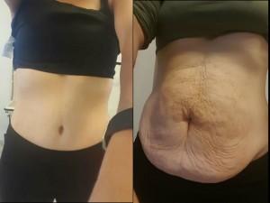 ניתוח מתיחת בטן תמונות לפני ואחרי של לקוחה