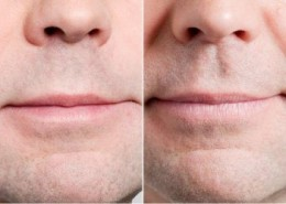 חומצה הילרונית בשפתיים לגברים