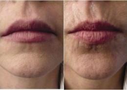 העלמת קמטים בשפתיים