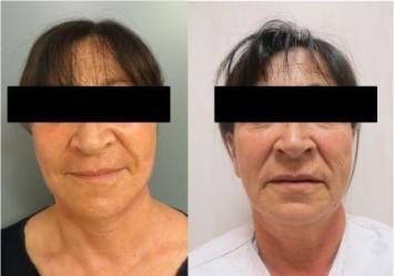תמונות אישה מתיחת פנים לפני ואחרי