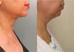 תמונות לפני ואחרי ניתוח מתיתח צוואר