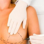 ניתוח חזה - חזה לא סימטרי