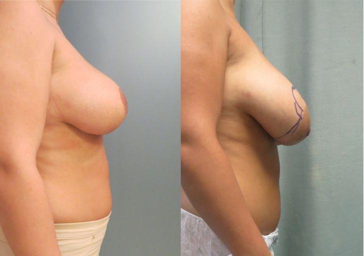 אישה לאחר הקטנה והרמת חזה תמונות לפני ואחרי