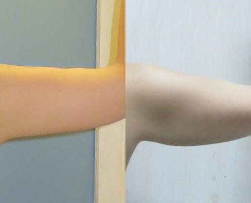 תמונה לפני ואחרי בודיטייט בזרועות