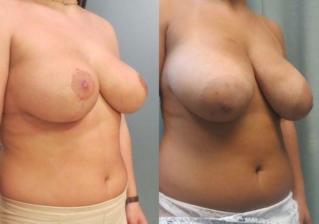 תמונות לפני ואחרי ניתוח הקטנת חזה דר שבשין