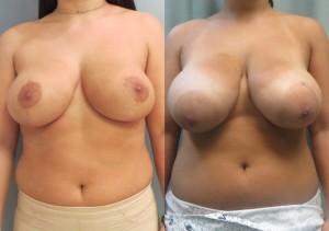 תמונות לפני ואחרי ניתוח הקטנת חזה מבט מהחזית
