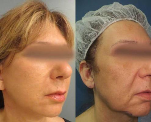 תמונה לפני ואחרי ניתוח מתיחת פנים