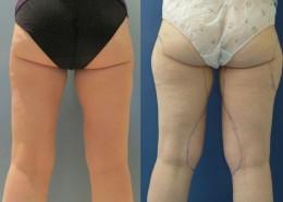 תמונה לפני ואחרי הצרת היקפים - בודיטייט (bodytite) ברגליים