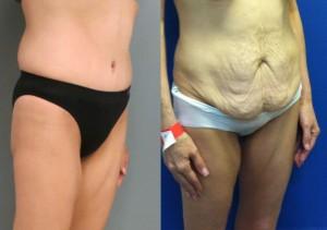 אישה לאחר ניתוח מתיחת בטן תמונות לפני ואחרי