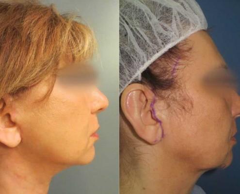 ניתוח פנים מראה מהצד