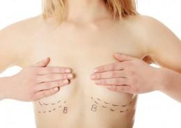 אישה לאחר ניתוח הקטנת חזה