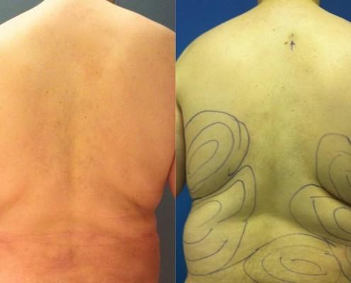 תמונה לפני ואחרי הצרת היקפים - בודיטייט (bodytite) בגב