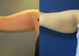 תמונה לפני ואחרי הצרת היקפים - בודיטייט (bodytite) בזרועות