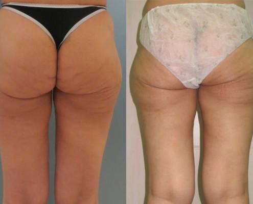 תמונה לפני ואחרי הצרת היקפים - בודיטייט (bodytite) בעכוז