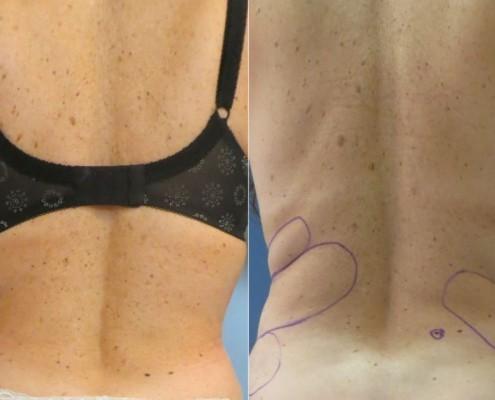 תמונה לפני ואחרי הצרת היקפים - בודיטייט (bodytite) בגב תחתון