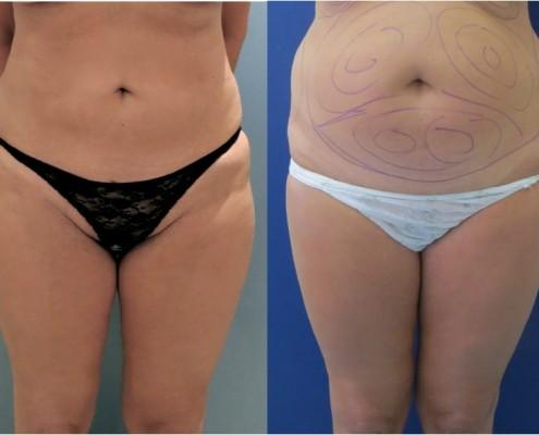 אישה שעברה הצרת היקפים בשיטת בודיטייט בבטן