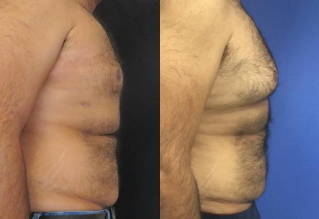 תמונות לפני ואחרי ניתוח הקטנת חזה (גניקומסטיה)