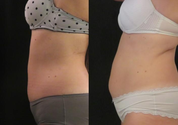 תמונות לפני ואחרי המסת שומן בקור