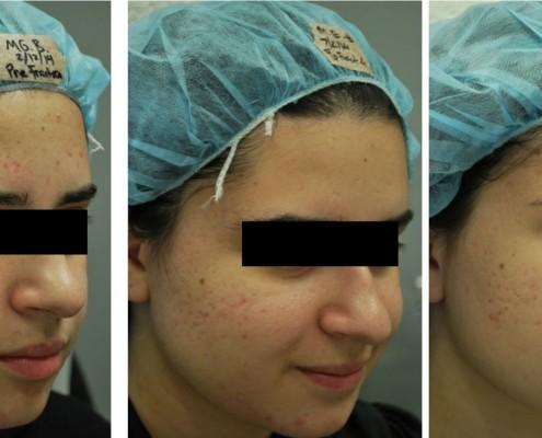 טיפול פנים אצל דק שבשין - תוצאות