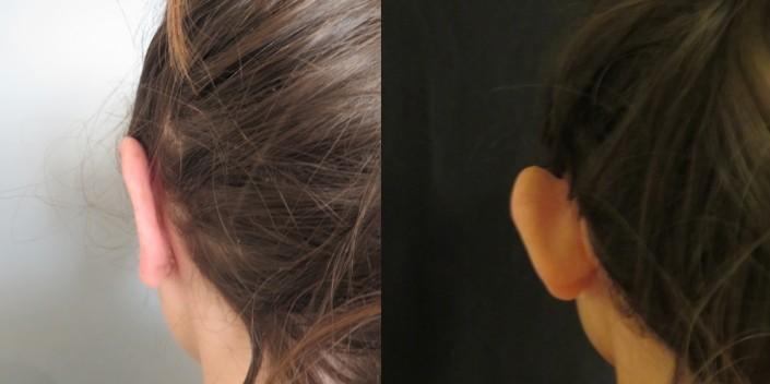 מבט מאחור על ניתוח הצמדת אוזניים