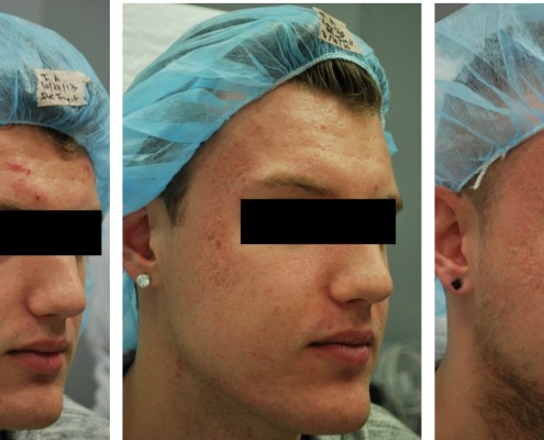 מתיחת פנים לפני ואחרי תמונות