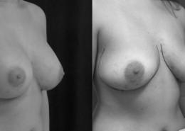 לפני ואחרי ניתוח הרמת חזה