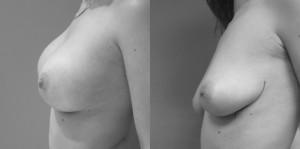 פרופיל ניתוח הגדלת חזה