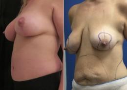 תמונות לפני ואחרי ניתח מתיחת בטן והרמת חזה