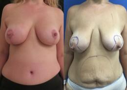 אישה שעברה ניתוח הרמת חזה ומתיחת בטן