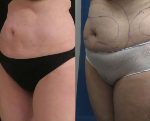 תמונה לפני ואחרי בודיטייט בבטן