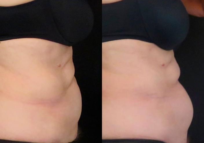 תמונות לפני ואחרי coolsculpting המסת שומן בקור