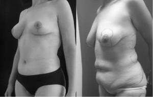 תמונות לפני ואחרי ניתוח הרמת חזה ומתיחת בטן